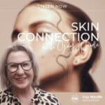 Skin Connection With Gay Wardle